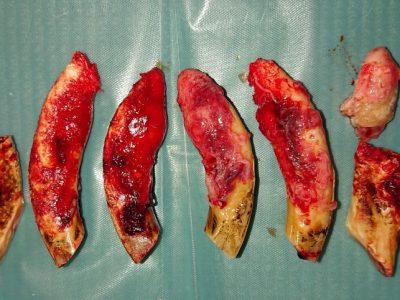 Extrahierte Oberkieferzähne