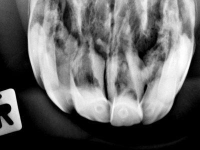 Aufgrund der starken Schmerzhaftigkeit beim Röntgen, selbst in Sedation sind hier leider keine scharfen Röntgenbilder entstanden