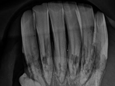 Röntgenbild Unterkiefer: Keine Knollenbildung aber massive Auflösung aller Zähne im Bereich von Reservekrone und Wurzel