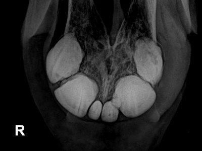 Auch im Röntgenbild bestätigt sich, ein fast zum Stillstand gekommener Krankheitsverlauf. Die Knollen sind scharf begrenzt und es finden sich nur wenige Knochenreaktionen. Hier bestand zunächst kein Handlungsbedarf.