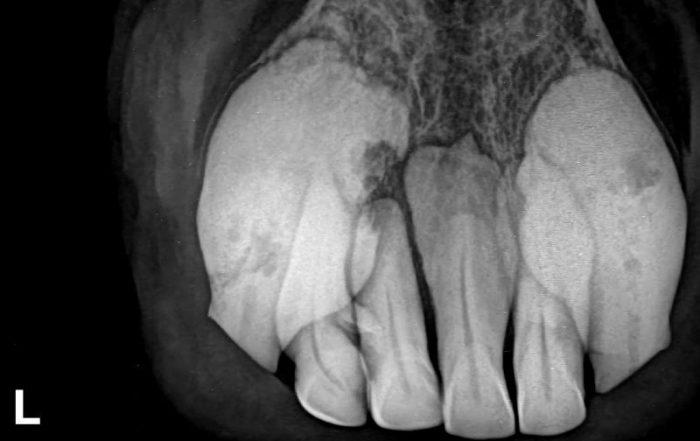 Im Unterkiefer allerdings, sind besonders an den äußeren beiden Zähnen (303, 403) massive, entzündliche Veränderungen zu sehen, die auch von außen wahrnehmbar waren. Beide Zähne waren bereits instabil. Diese beiden und der frakturierte zweite Zahn (302) auf der linken Seite wurden im Anschluss extrahiert.