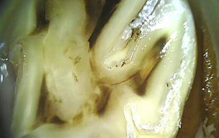 Zum Vergleich ein Zahn bei dem die Auflösung der verschiedenen Strukturen schon recht weit fortgeschritten ist. Die Kaufläche ist insbesondere auf der äußeren Hälfte (links) spiegelglatt.